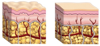 What is Cellulite - Structure of Skin
