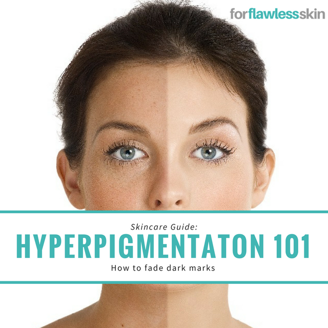 Hyperpigmentation 101: What it is and How to Treat it