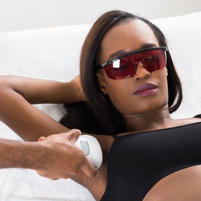 Laser Hair Removal for Dark African-American Skin